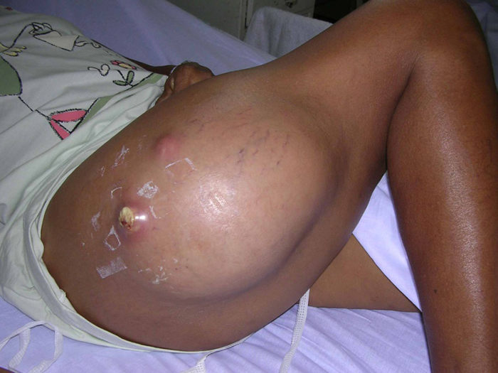 Photo of Skin and Soft Tissue Infections