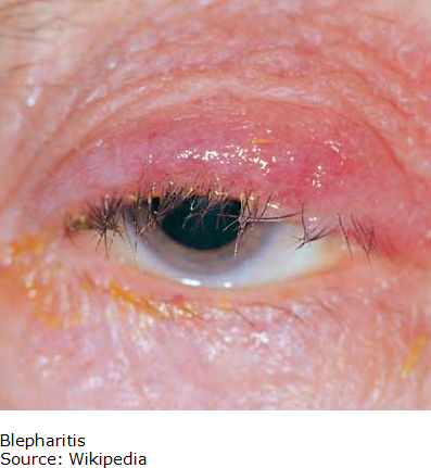 Picture of Blepharitis