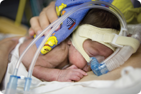 Image 2 Picture of baby on mechanical ventilation